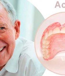 Зубные протезы Acry Free