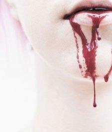 Не останавливается кровь после удаления зуба мудрости