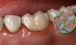 Зубная бляшка