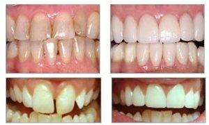 Виниры на передние зубы фото
