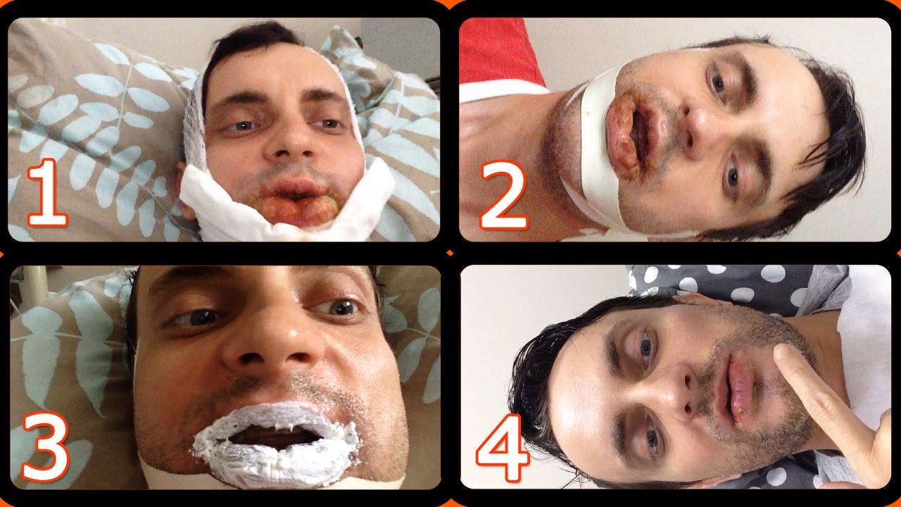 Ортогнатическая операция - до и после