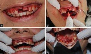 Выполнение операции по реплантации зуба