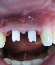 Имплантация зубов на передние зубы, фото до