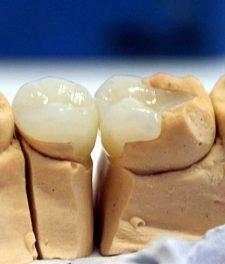 Микропротезирование зубов