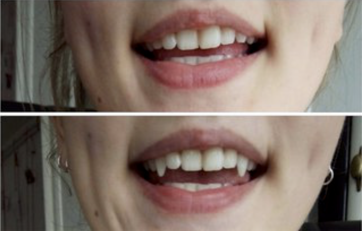 Наращенные клыки до и после