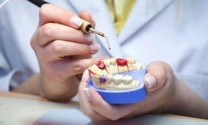 Перебазировка съемного зубного протеза