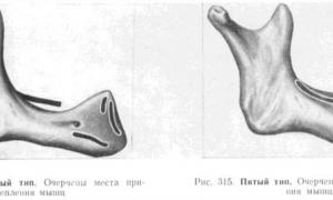 4 и 5 тип по Курляндскому