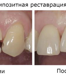 Композитная реставрация зубов до и после