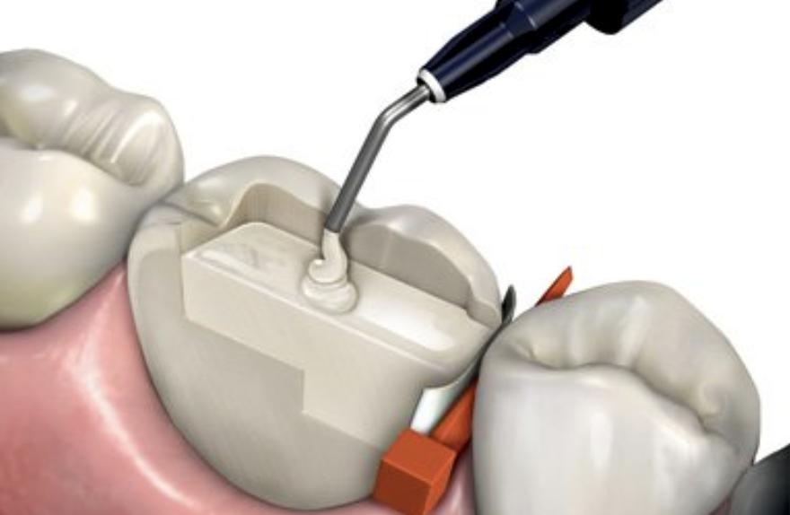 Нанокомпозиты в стоматологии