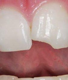 Откололся кусочек зуба - что делать?