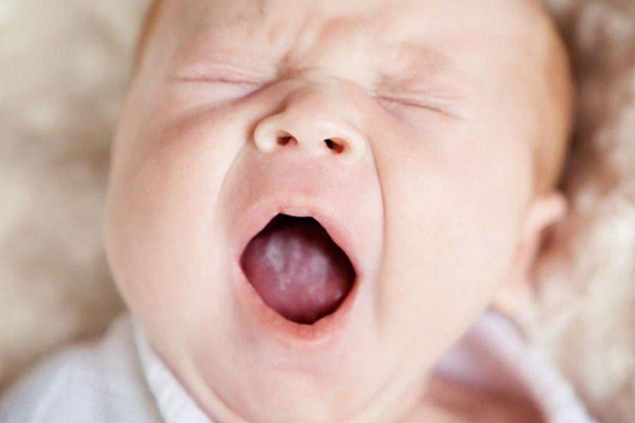 Молочница у новорожденного - фото