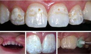 Серебрение молочных зубов у детей - фото до и после