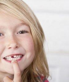 У ребенка выпал зуб, а новый не растет