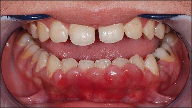 Фиброматоз десен - фото