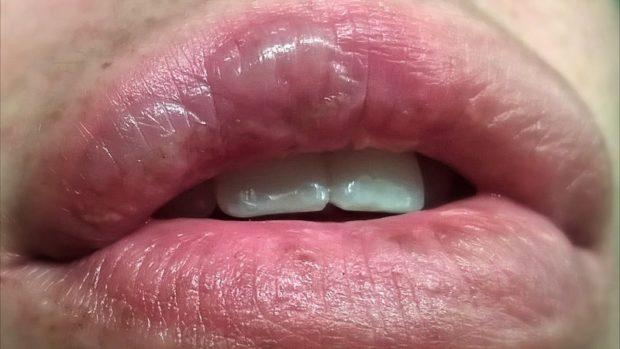 Ожог губы - фото