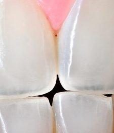 Прозрачные зубы фото