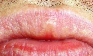 Белые пятна на губах - фото
