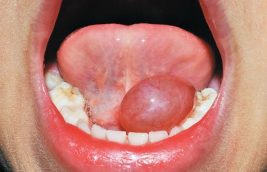Как выглядит шарик под языком?