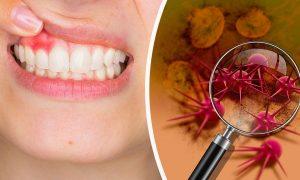 Воспаление слизистой полости рта