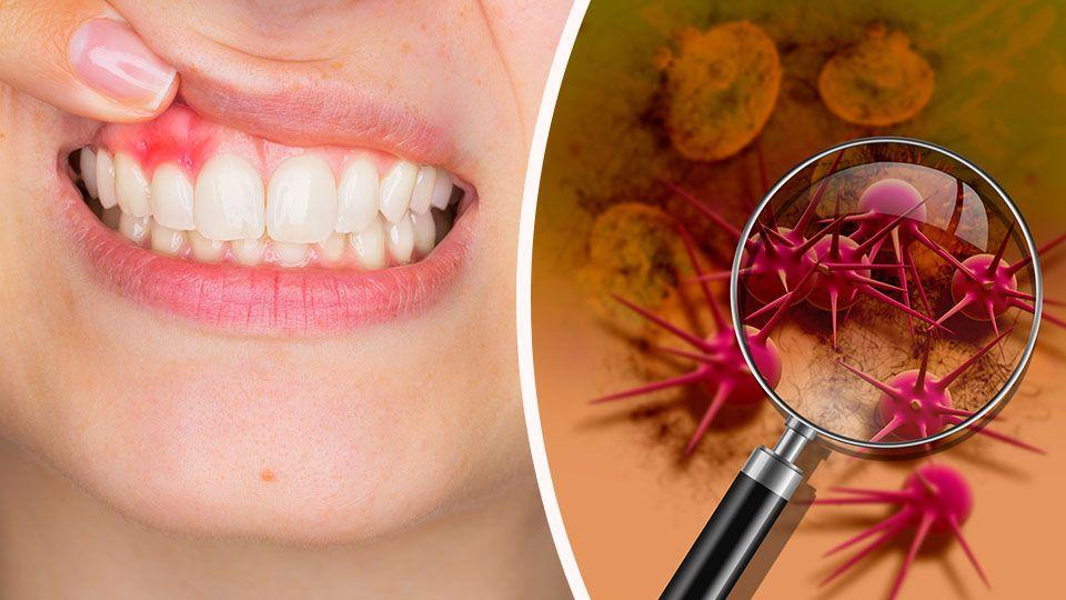 Воспаление на слизистой рта