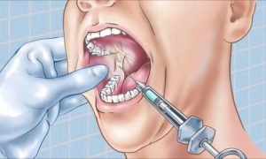 Мандибулярная анестезия в стоматологии