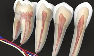 Зубные каналы